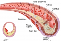 Artherosclerosis -3