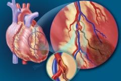 Coronary Occlusion